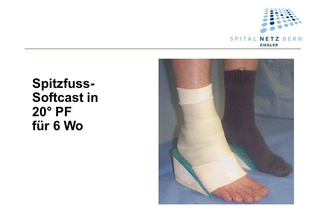 Spitzfuss- Softcast in 20° PF für 6 Wo