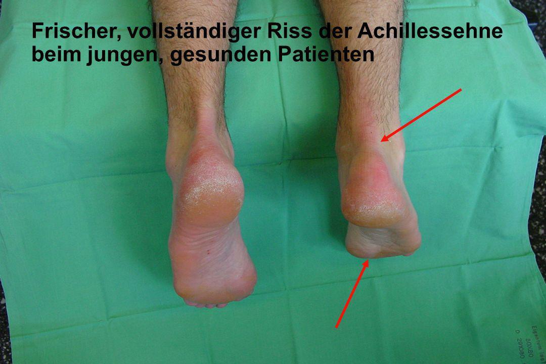 Frischer, vollständiger Riss der Achillessehne
