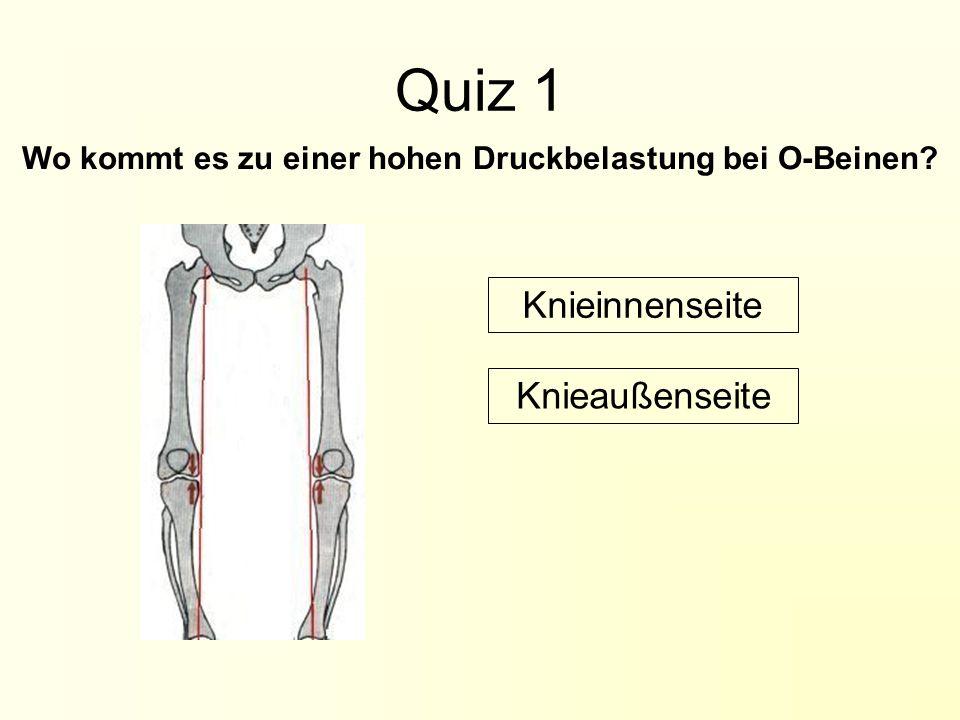 Wo kommt es zu einer hohen Druckbelastung bei O-Beinen