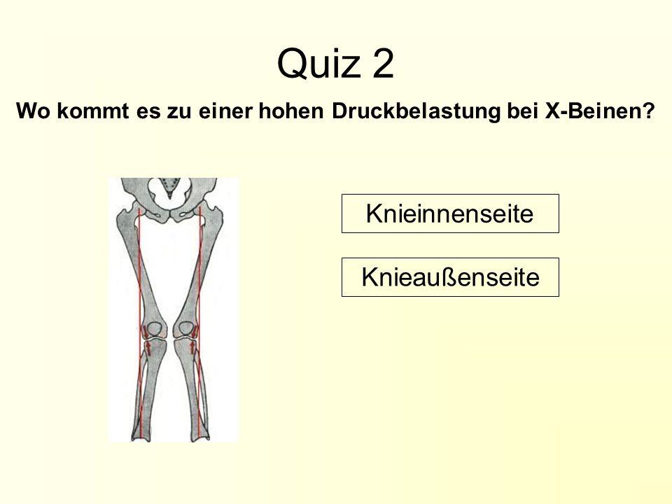 Wo kommt es zu einer hohen Druckbelastung bei X-Beinen