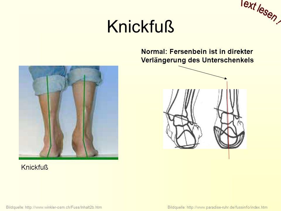 Knickfuß Text lesen ! Normal: Fersenbein ist in direkter Verlängerung des Unterschenkels.