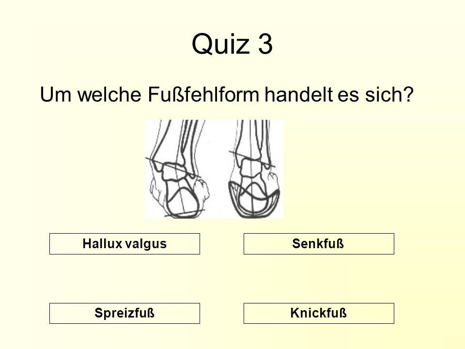 Quiz 3 Um welche Fußfehlform handelt es sich Hallux valgus Senkfuß