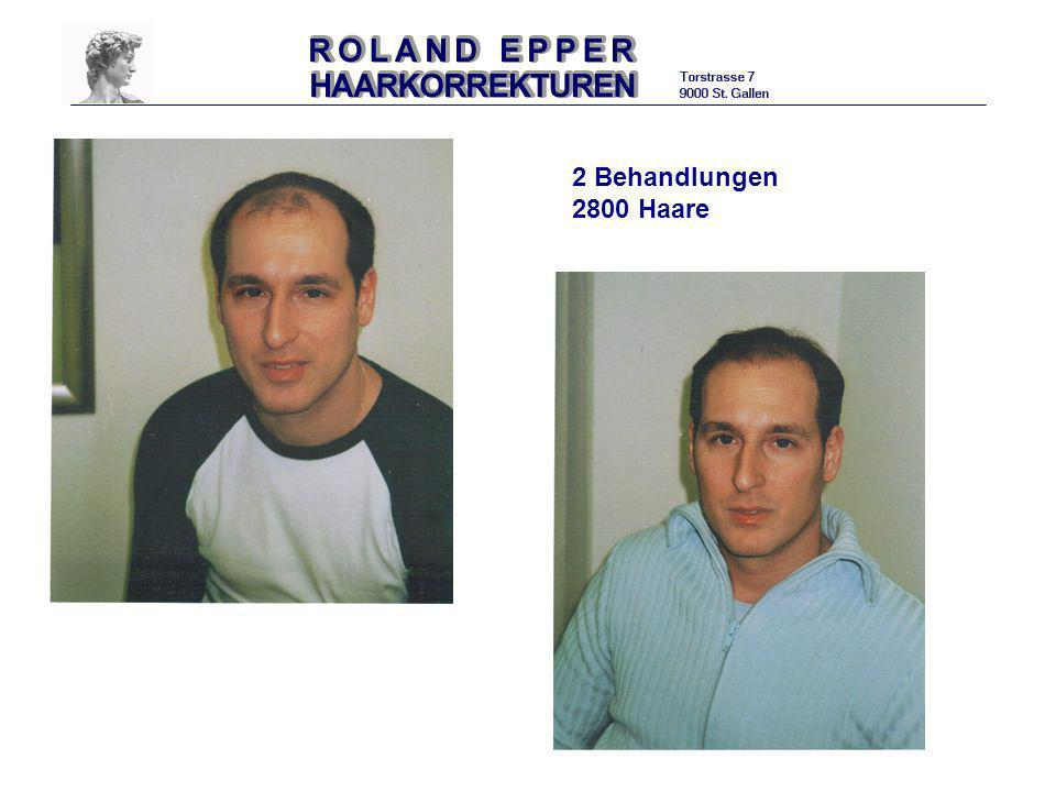 2 Behandlungen 2800 Haare