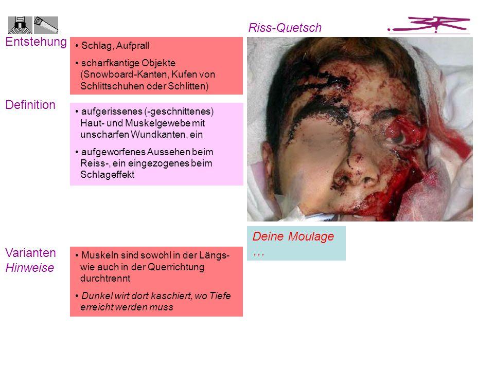 Riss-Quetsch Entstehung Definition Deine Moulage … Varianten Hinweise