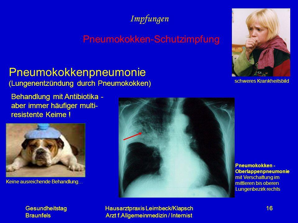 Pneumokokkenpneumonie (Lungenentzündung durch Pneumokokken)