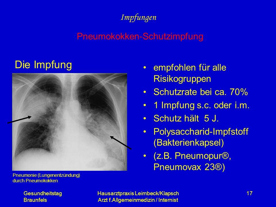 Die Impfung Impfungen Pneumokokken-Schutzimpfung