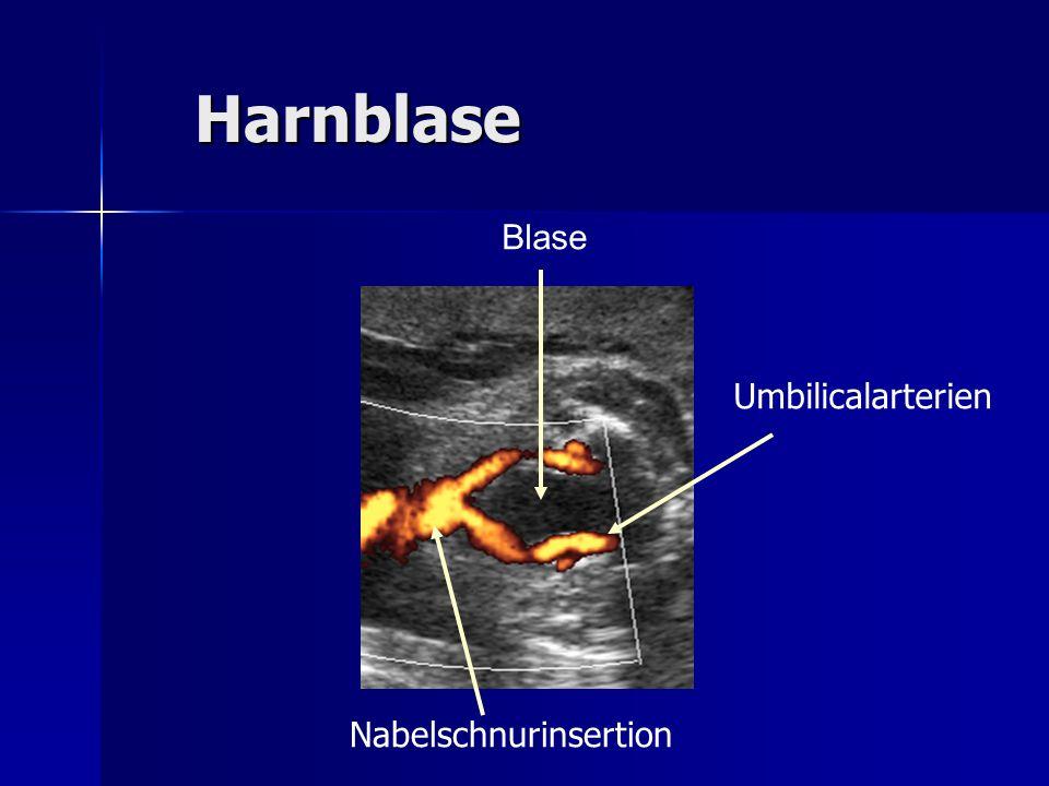 Harnblase Blase Umbilicalarterien Nabelschnurinsertion