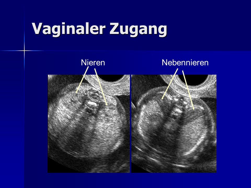 Vaginaler Zugang Nieren Nebennieren