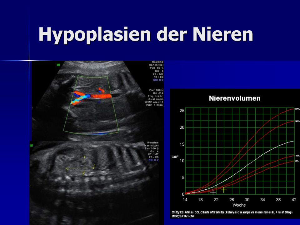 Hypoplasien der Nieren