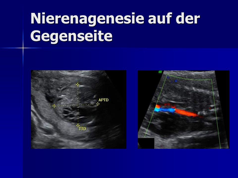 Nierenagenesie auf der Gegenseite