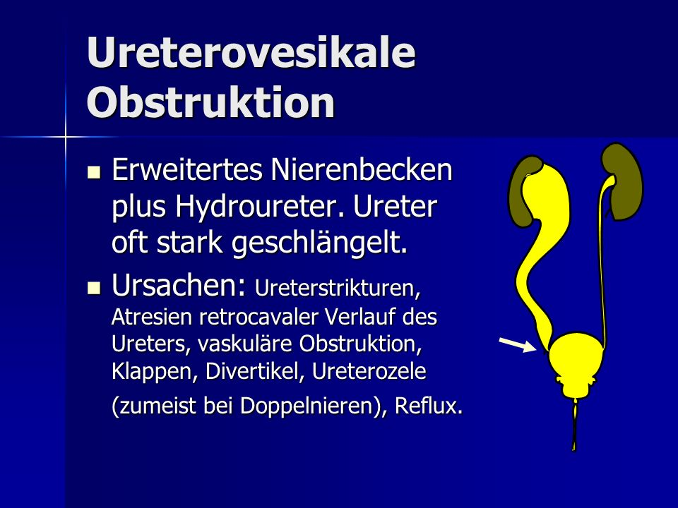 Ureterovesikale Obstruktion