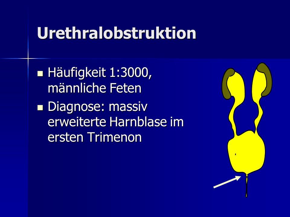Urethralobstruktion Häufigkeit 1:3000, männliche Feten