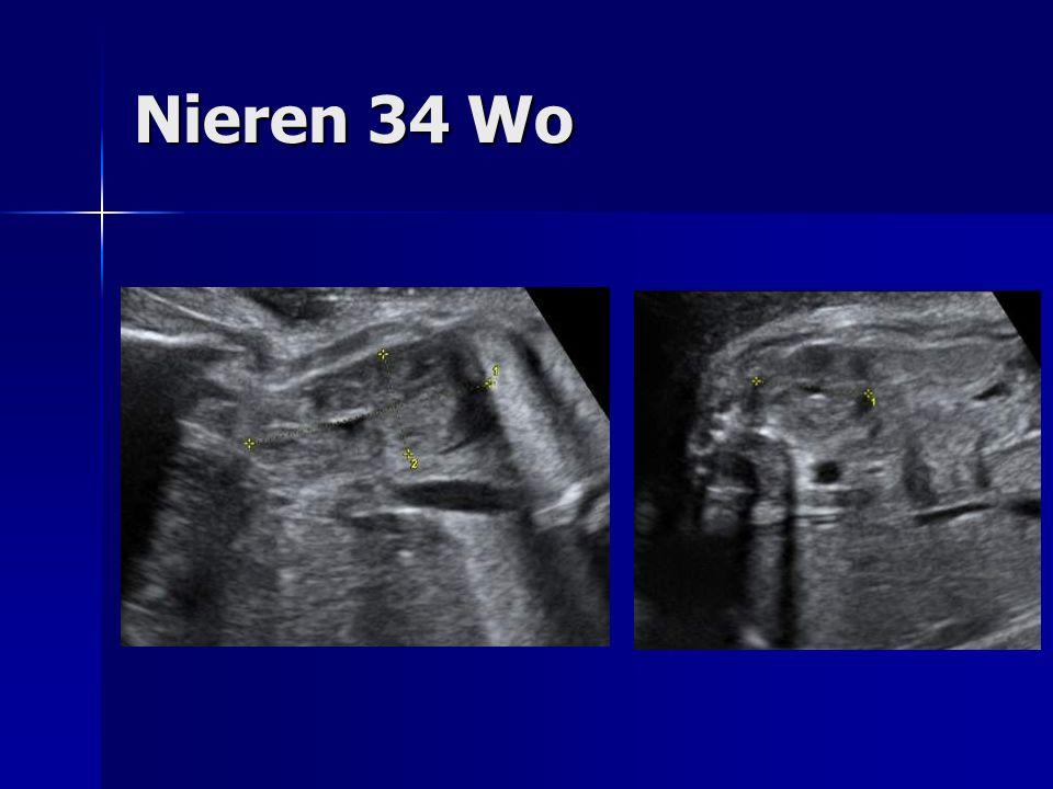 Nieren 34 Wo
