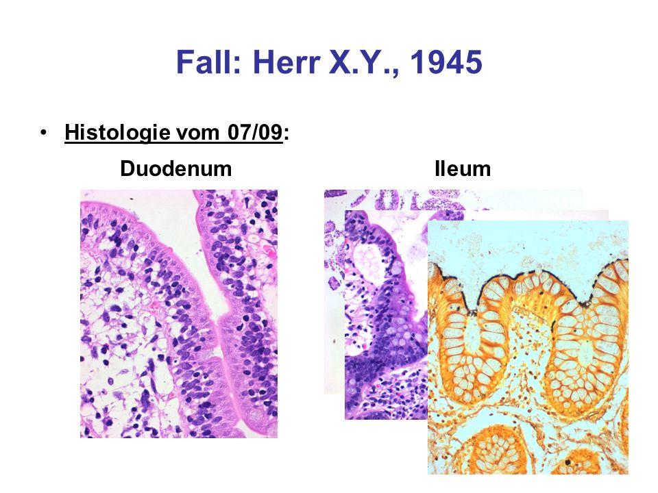 Fall: Herr X.Y., 1945 Histologie vom 07/09: Duodenum Ileum