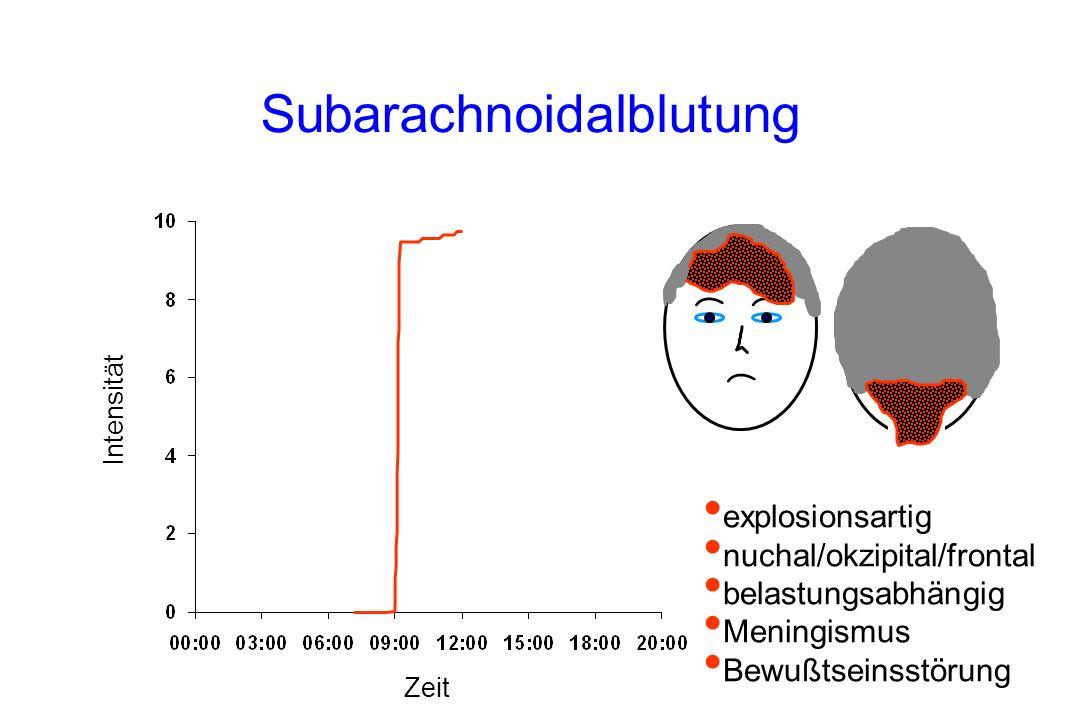 Subarachnoidalblutung