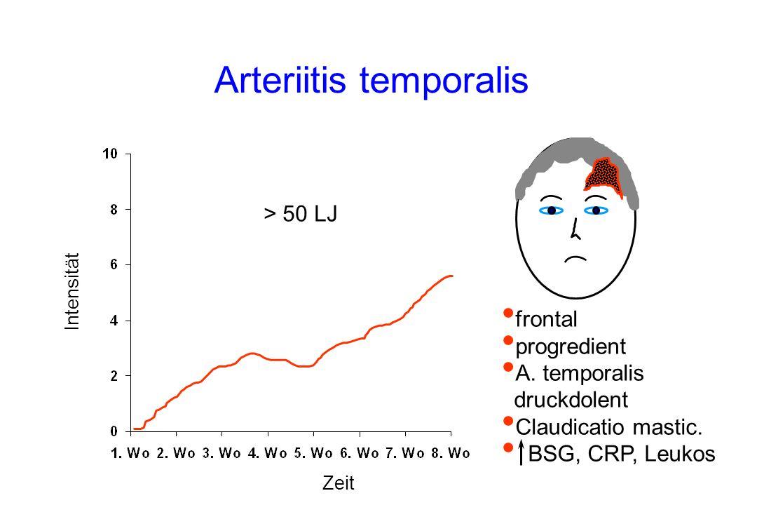 Arteriitis temporalis