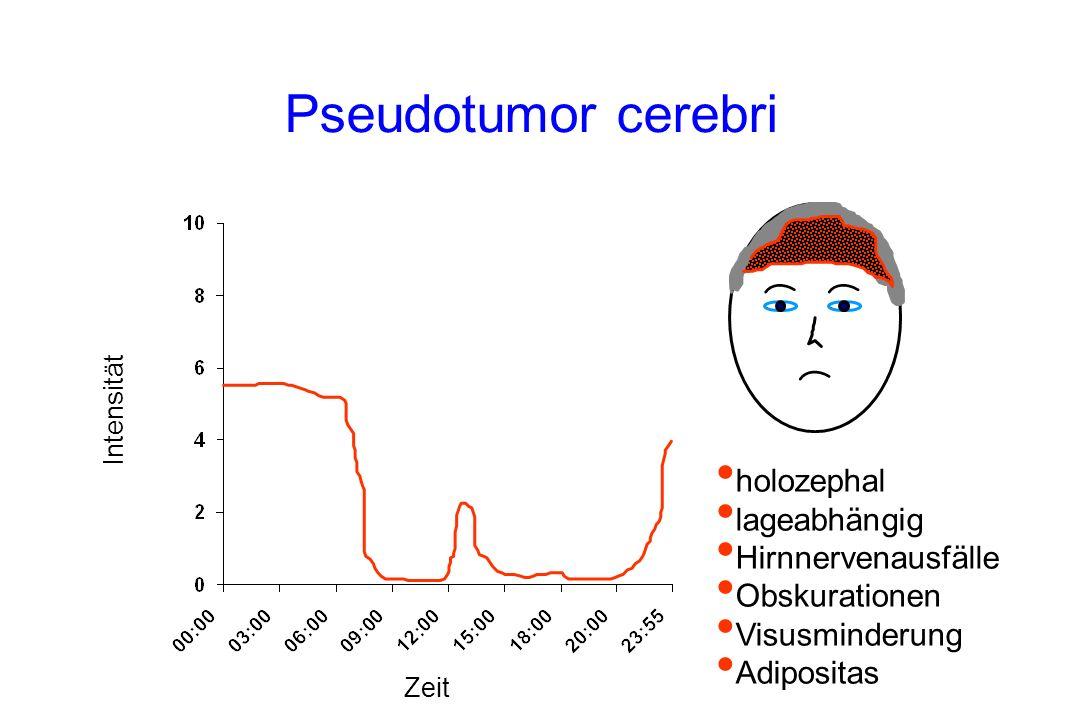 Pseudotumor cerebri holozephal lageabhängig Hirnnervenausfälle