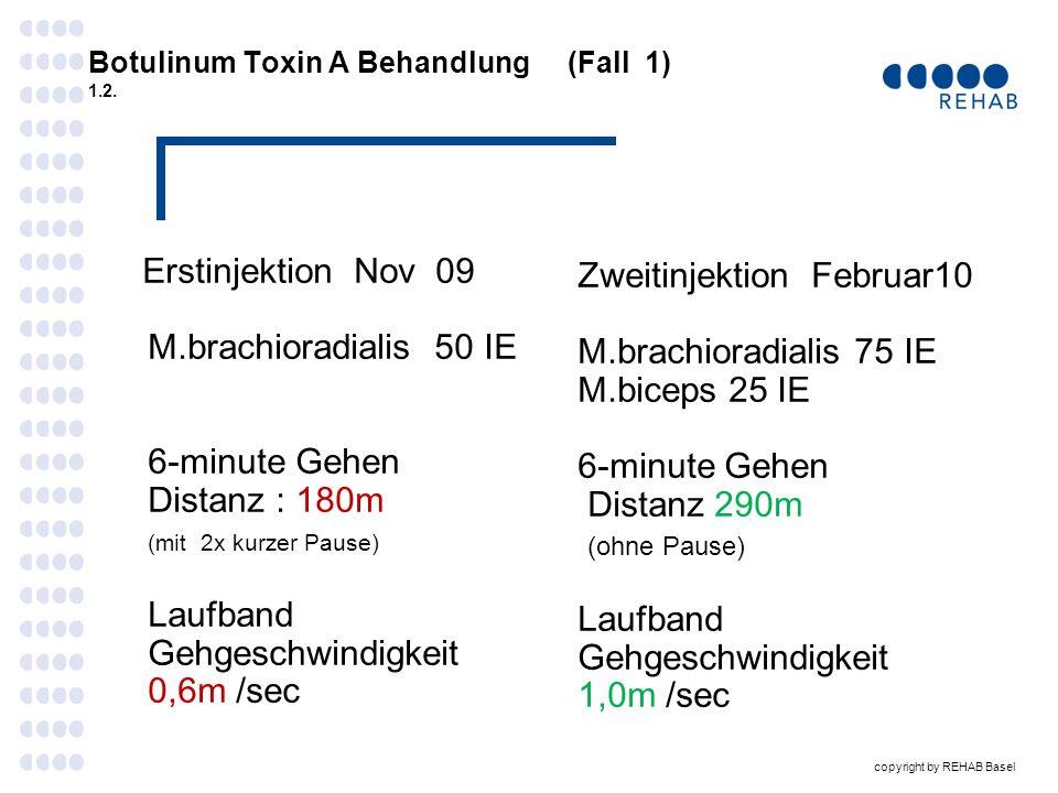 Botulinum Toxin A Behandlung (Fall 1) 1.2.