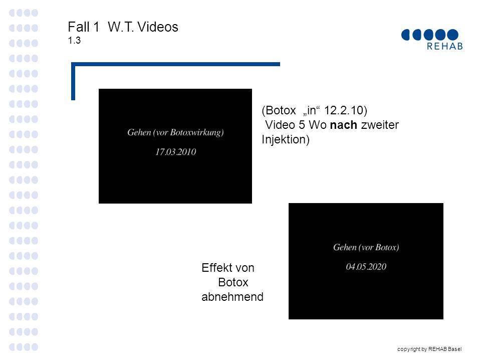 """Fall 1 W.T. Videos (Botox """"in 12.2.10)"""