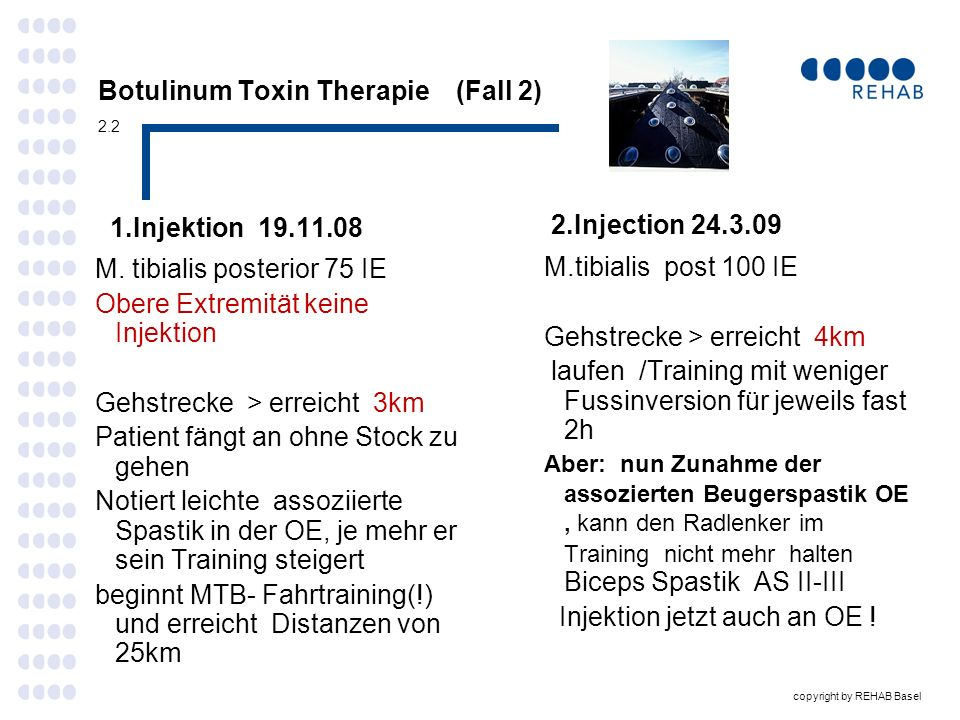 Botulinum Toxin Therapie (Fall 2) 2.2