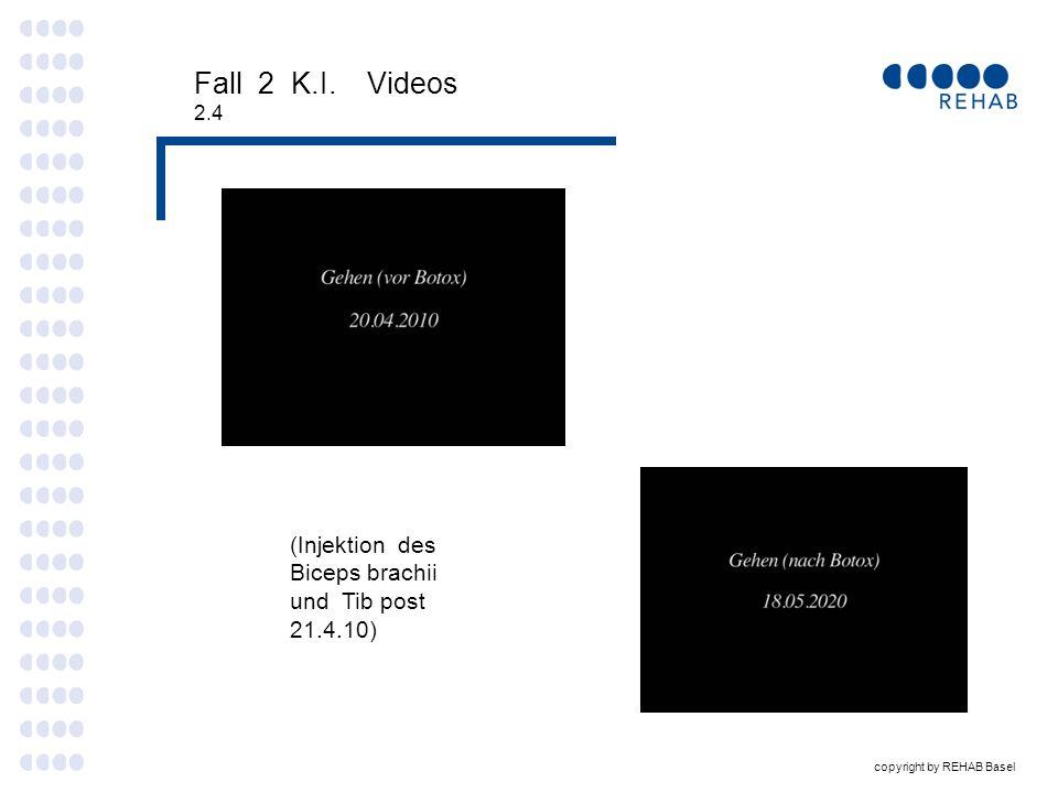 Fall 2 K.I. Videos (Injektion des Biceps brachii und Tib post 21.4.10)