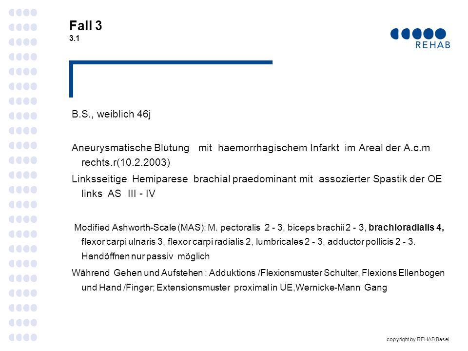 Fall 3 3.1 B.S., weiblich 46j. Aneurysmatische Blutung mit haemorrhagischem Infarkt im Areal der A.c.m rechts.r(10.2.2003)
