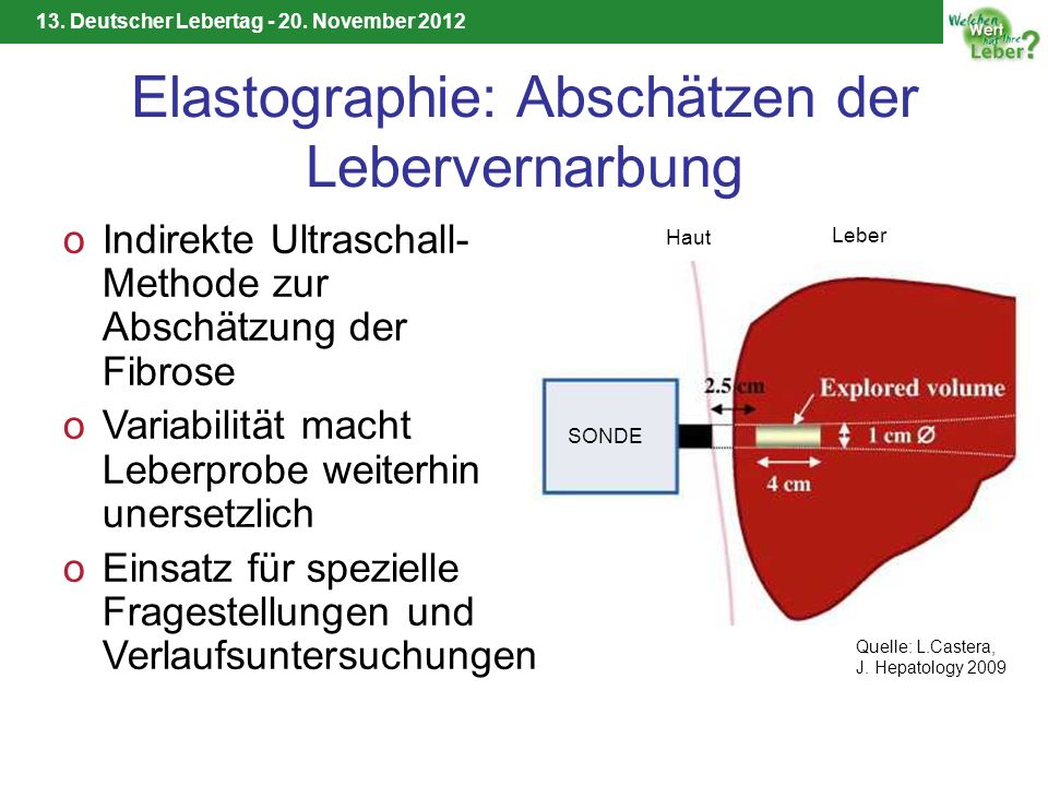 Elastographie: Abschätzen der Lebervernarbung
