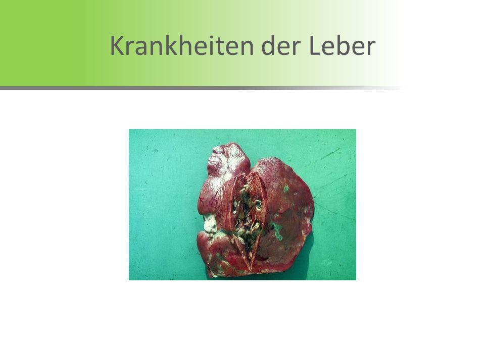 Krankheiten der Leber