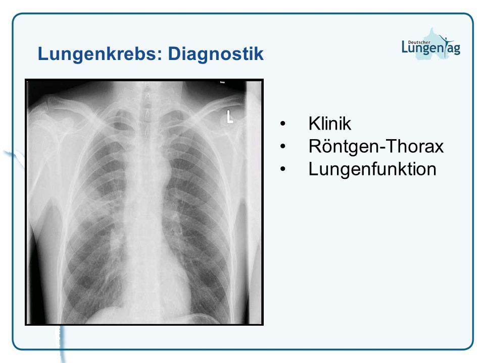 Lungenkrebs: Diagnostik