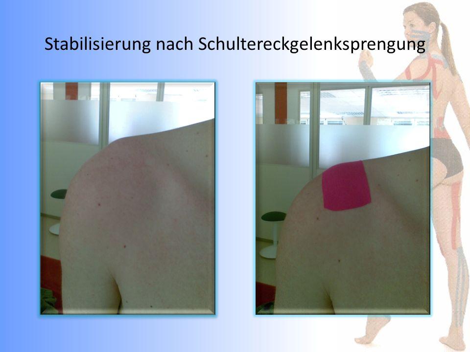 Stabilisierung nach Schultereckgelenksprengung