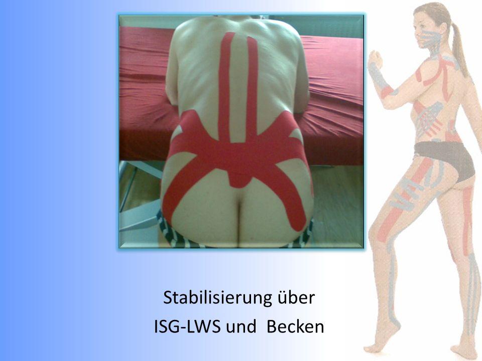Stabilisierung über ISG-LWS und Becken
