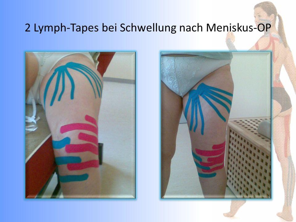 2 Lymph-Tapes bei Schwellung nach Meniskus-OP