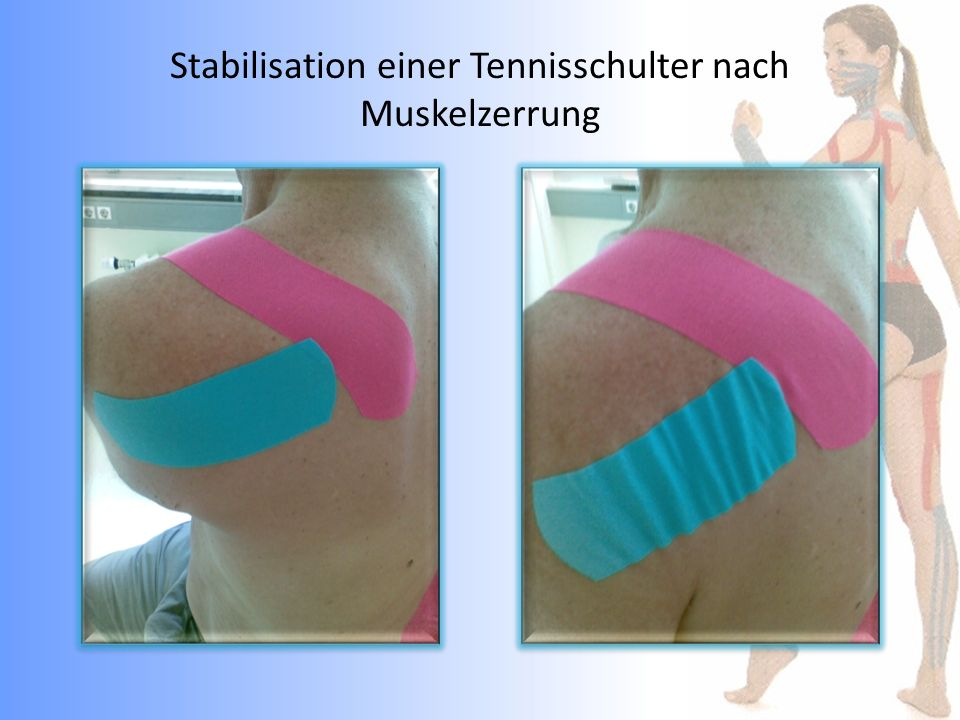 Stabilisation einer Tennisschulter nach Muskelzerrung