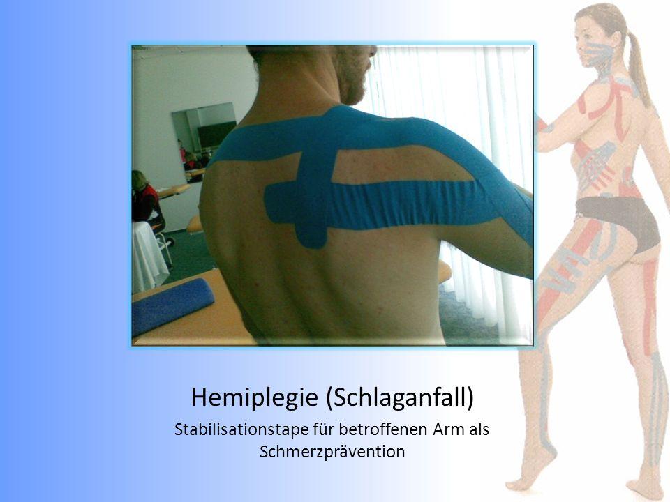 Hemiplegie (Schlaganfall)