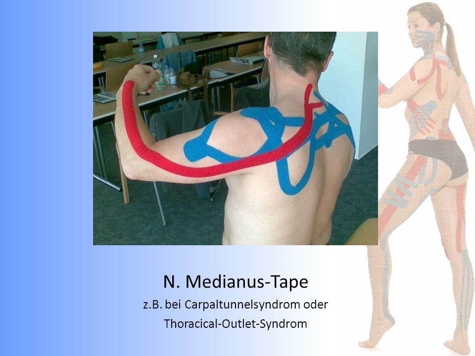 N. Medianus-Tape z.B. bei Carpaltunnelsyndrom oder