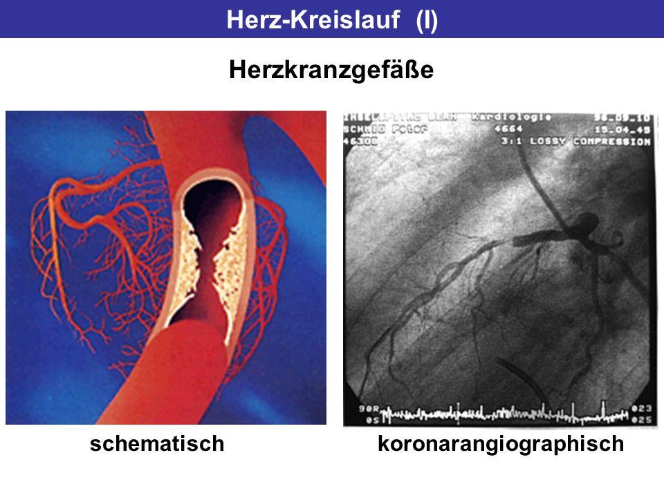 Herz-Kreislauf (I) Herzkranzgefäße schematisch koronarangiographisch
