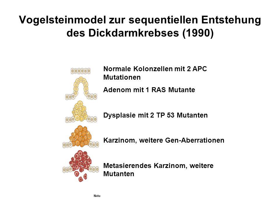 Vogelsteinmodel zur sequentiellen Entstehung des Dickdarmkrebses (1990)
