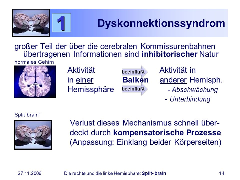 Dyskonnektionssyndrom
