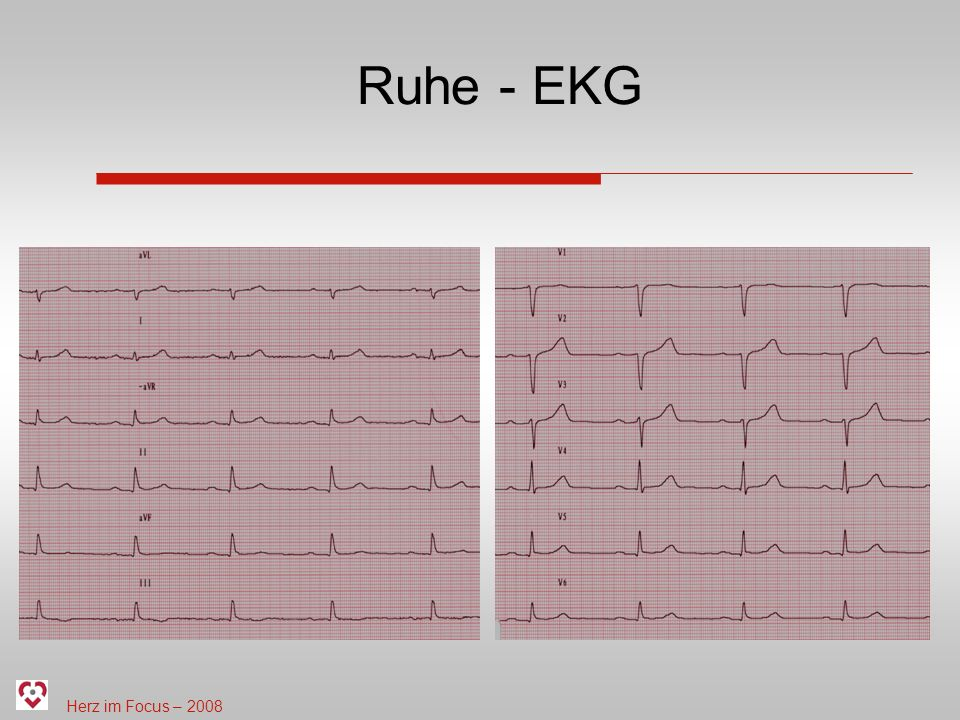 Ruhe - EKG