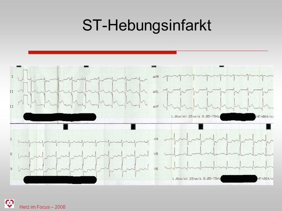ST-Hebungsinfarkt