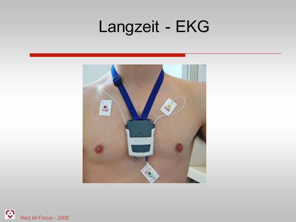 Langzeit - EKG