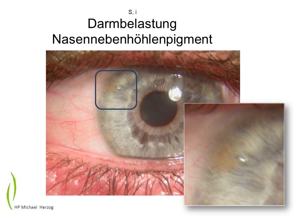 S, i Darmbelastung Nasennebenhöhlenpigment