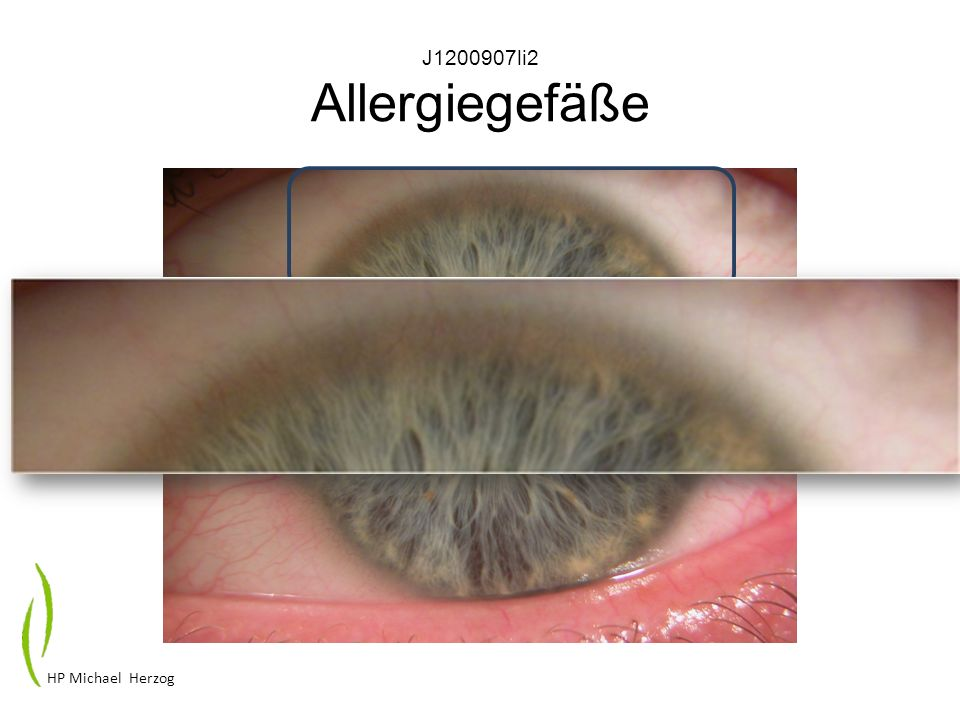 J1200907li2 Allergiegefäße HP Michael Herzog