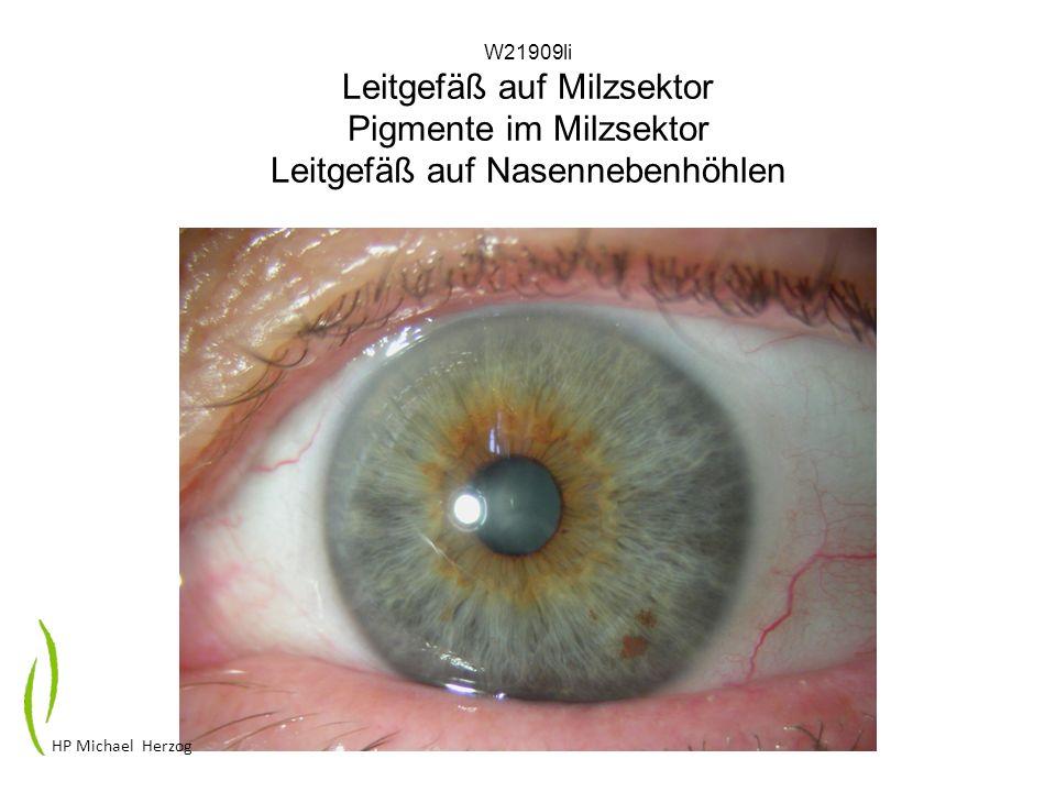 W21909li Leitgefäß auf Milzsektor Pigmente im Milzsektor Leitgefäß auf Nasennebenhöhlen