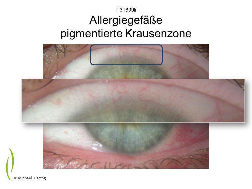 P31809li Allergiegefäße pigmentierte Krausenzone