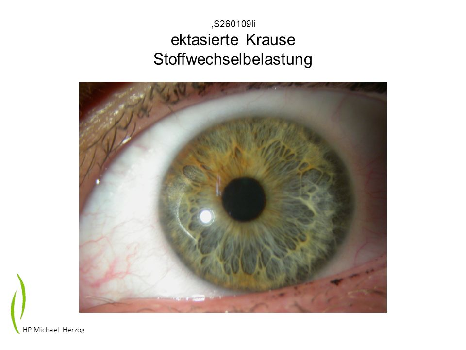 ,S260109li ektasierte Krause Stoffwechselbelastung