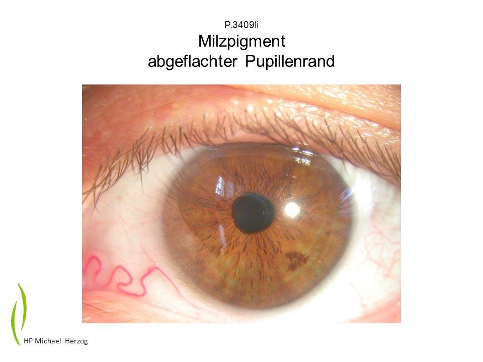 P,3409li Milzpigment abgeflachter Pupillenrand
