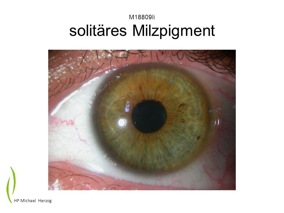 M18809li solitäres Milzpigment