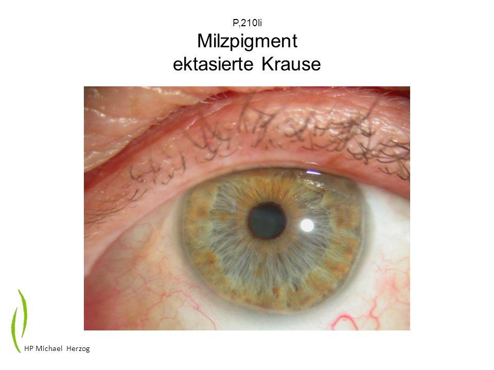 P,210li Milzpigment ektasierte Krause