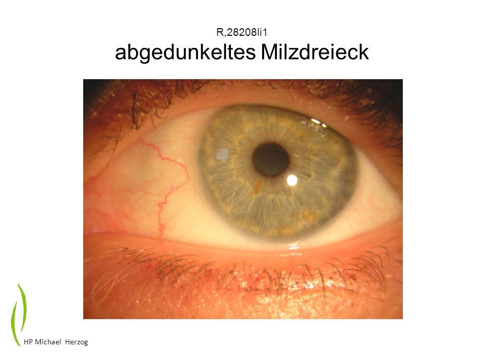 R,28208li1 abgedunkeltes Milzdreieck